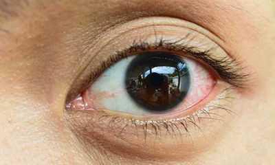 Virus Herpes Bisa Menyerang Mata, Apa Tanda dan Gejalanya?
