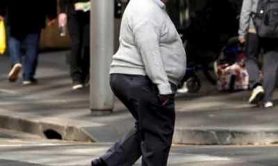 Hindari Risiko Komplikasi, Ini Langkah yang Perlu Dilakukan Penyandang Obesitas